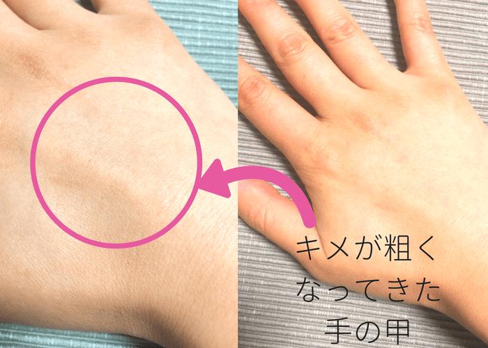 資生堂「飲む肌ケア」サプリ/検証・手の甲画像