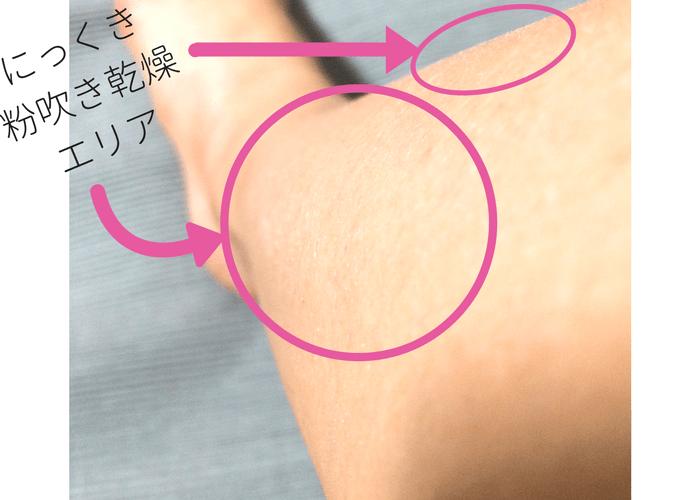 資生堂「飲む肌ケア」サプリ/検証・脚画像