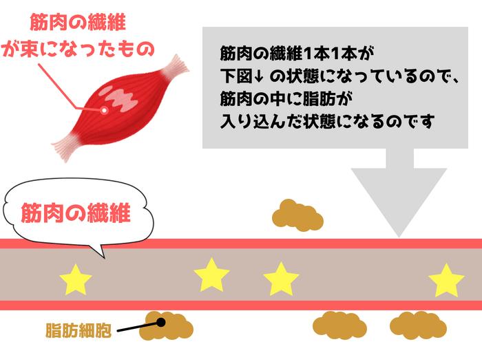 ふくらはぎ・筋肉の霜降り状態の図3