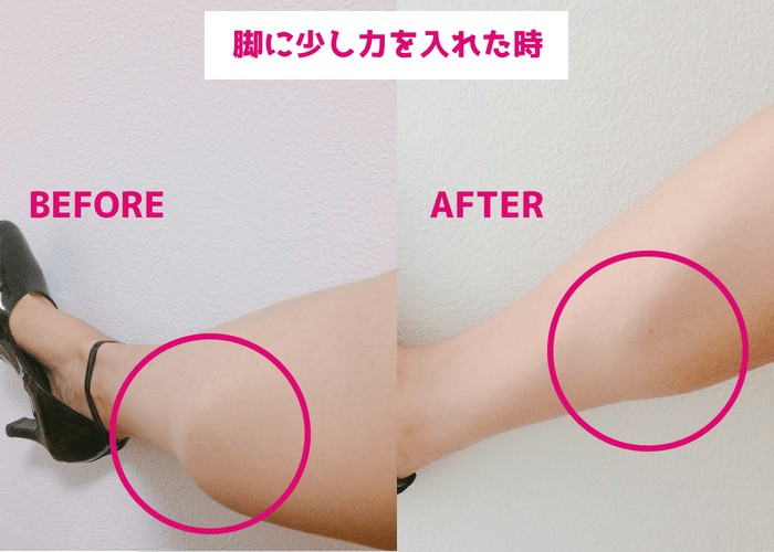 短期間で筋肉質なふくらはぎが痩せる方法【スクワット実践1.5ヵ月のbefore・after画像2】
