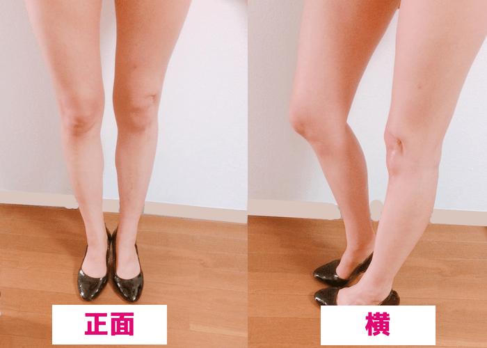 短期間で筋肉質なふくらはぎが痩せる方法【スクワット実践1.5ヵ月のbefore・after画像1】